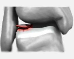 אילוסטרציה osteochondral fracture OLT